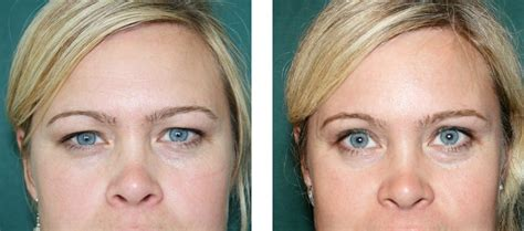 Before-and-After Photos, Forehead Lift | Institute of
