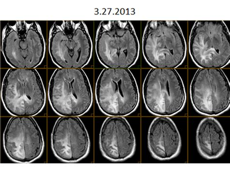 Happy with Cancer | National Brain Tumor Society