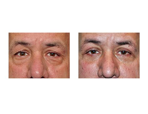 eyelid surgery Archives