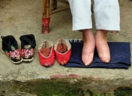 Terrible antique tradition: Foot binding in China