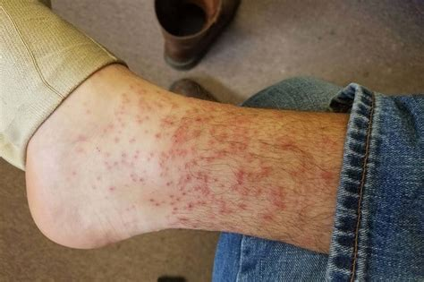 How Long Do Chiggers Live on Your Skin?   Skin Care Geeks