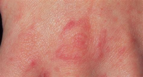 Scabies in babies - BabyCenter Canada