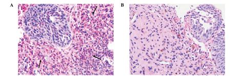 Eosinophilic cystitis in a patient with hypereosinophila