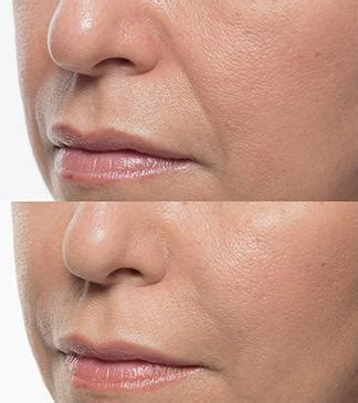 Fillers in Brooklyn, NY | Dr