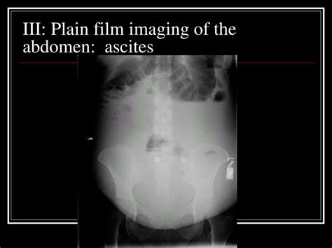 PPT - Introduction to Radiology PowerPoint Presentation